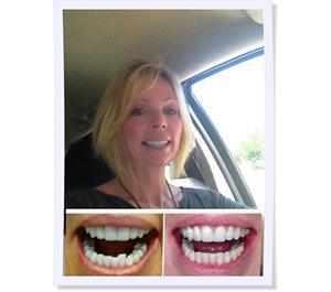 orthodontist for adult braces in fair oaks ca