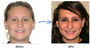 Before And After Braces Photo